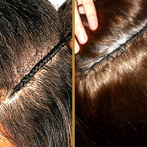 Most Natural Looking Permanent Hair Extensions
